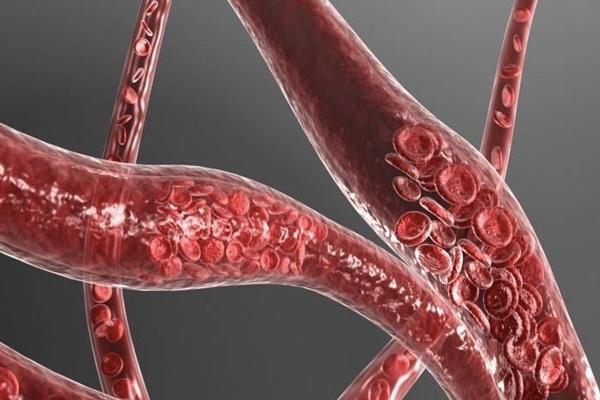 新植物 | 如何降低1770万心血管疾病死亡的人数?